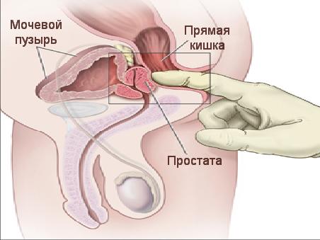 Формы простатита у мужчин