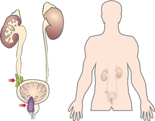 Медицинские препараты при раке предстательной железы
